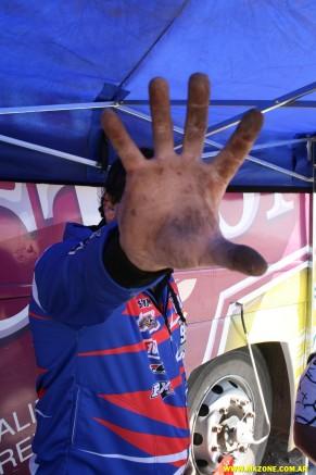 Parece la mano del mono de MDQ!